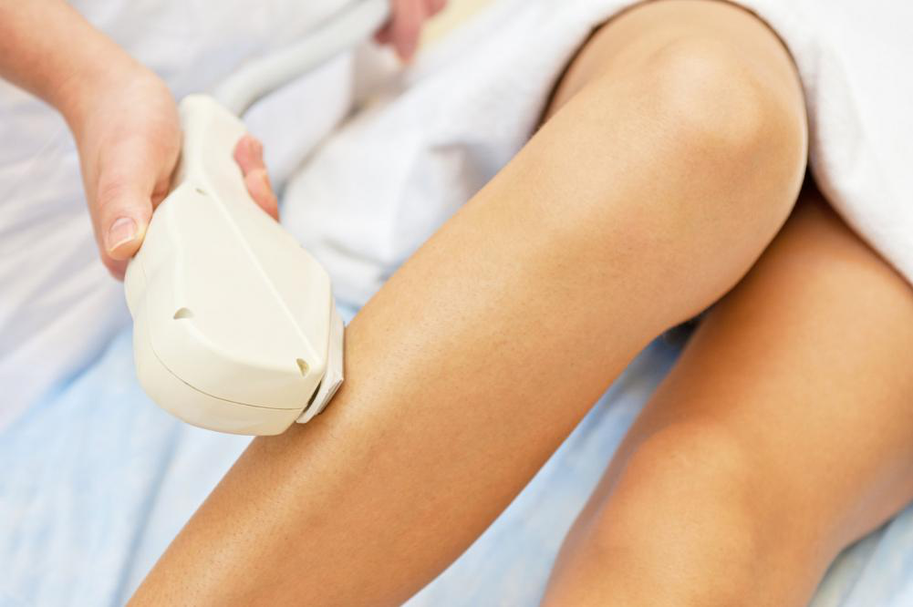 What You Need to Know about Laser Hair Removal?